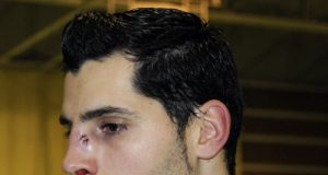 Así le quedó la cara a Champi tras el partido (Foto: Zureda Press)